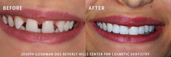 before and after dental photo 2