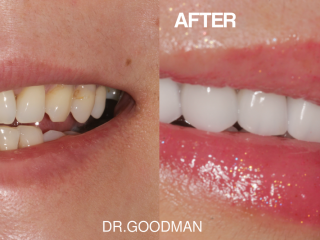 goodman before and after new (1)