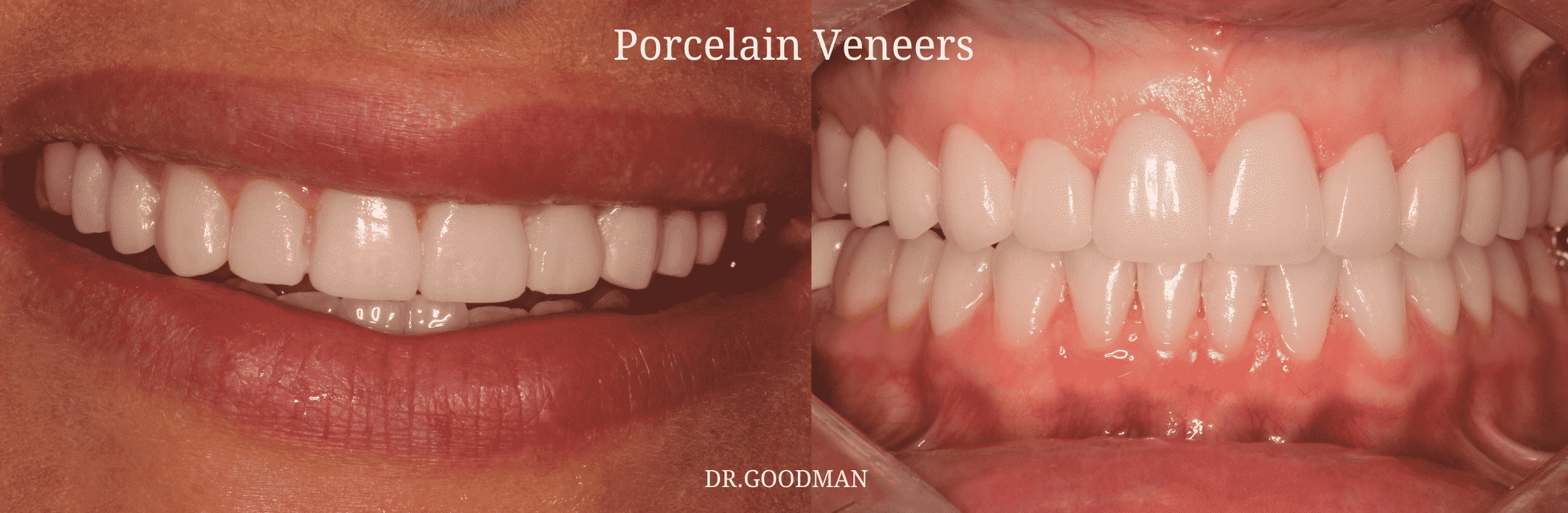 goodman porcelain veneers