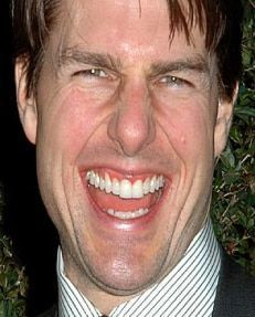 Tom Cruise, example of chiclet teeth