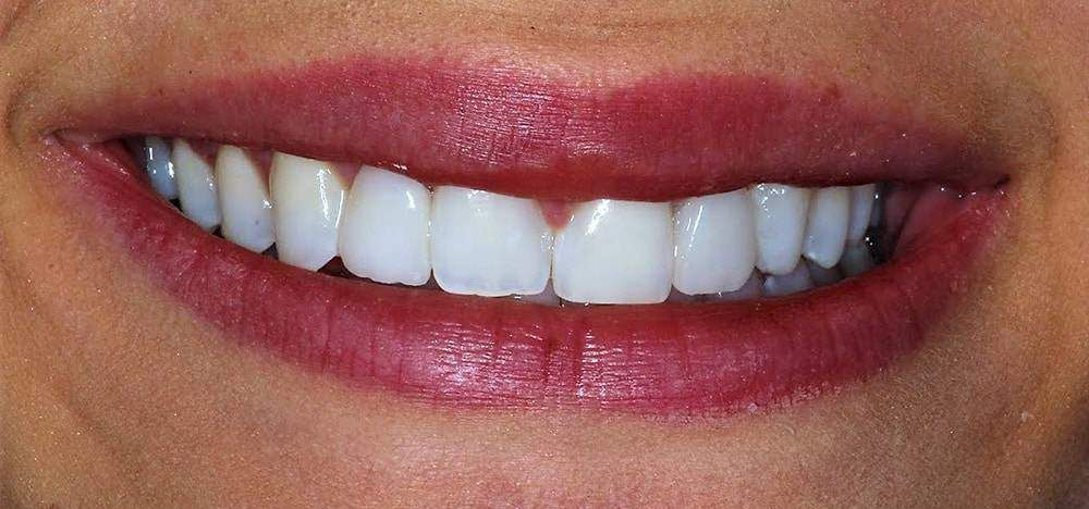 before and after dental photo 2 a 1
