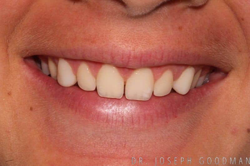 No prep short teeth before no prep copy