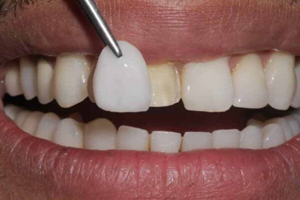 One Single veneer before