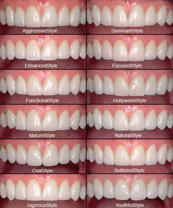 Smile Design by Dr Goodman