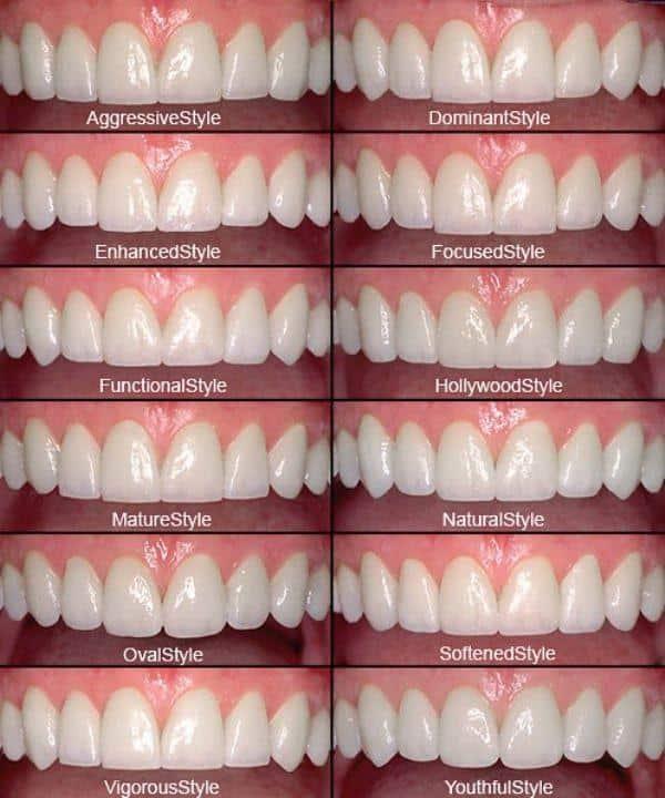 Smile Design by Dr Goodman