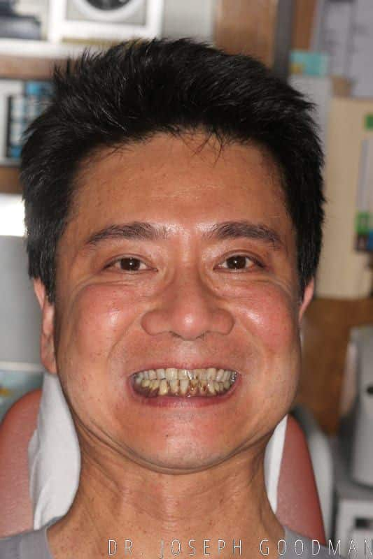 stained teeth full face
