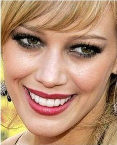 Actress Hillary Duff and fake looking Porcelain Veneers