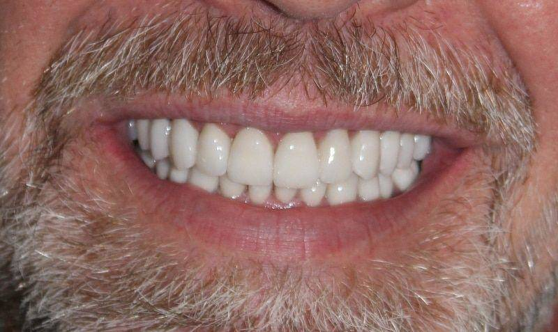 Mike After Veneers