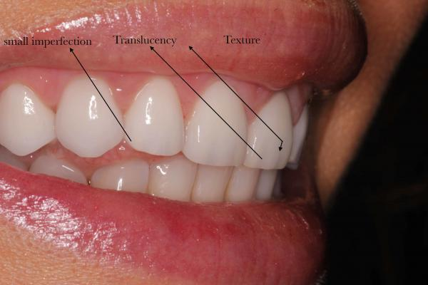Sample of Veneers