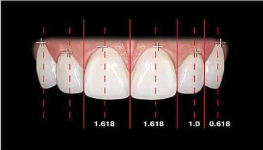 Beverly Hills Veneer Dentist Golden Proportion