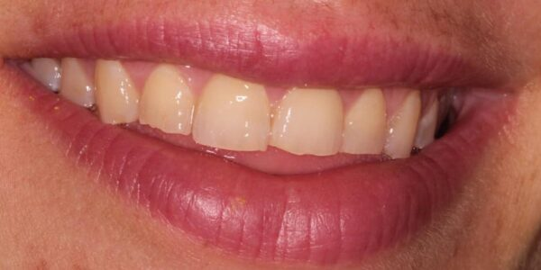 Veneers After Photo