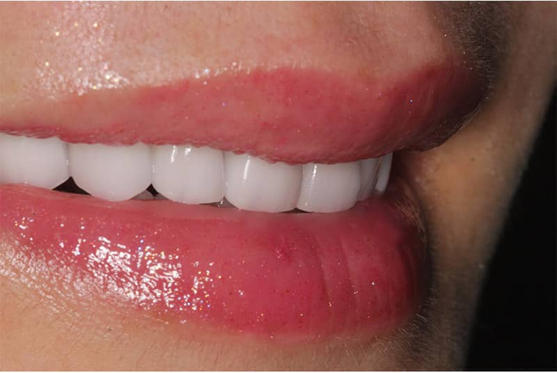 Invisalign Beverly Hills