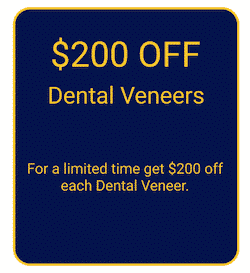 Veneers Coupon