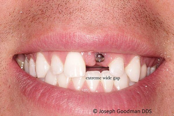 single tooth implant replacement before picture