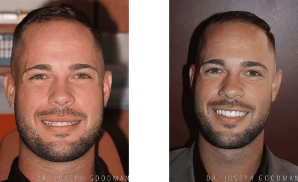 before and after: Porcelain Veneers to Correct Spaces and Size
