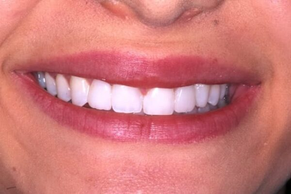 after invisalign with Dr. Goodman
