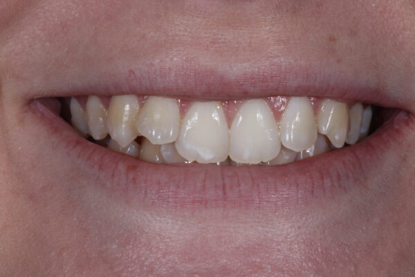 lady smiling before having instant orthodontics from Dr. Goodman