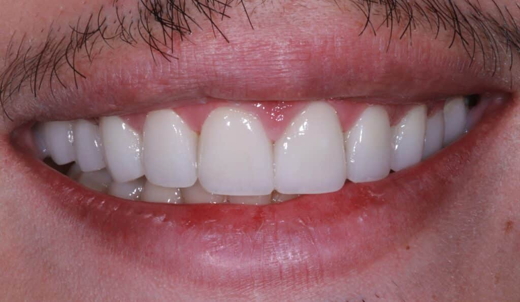 patient after photo with white teeth