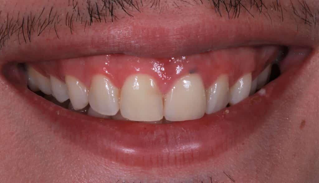patient before photo with yellow teeth
