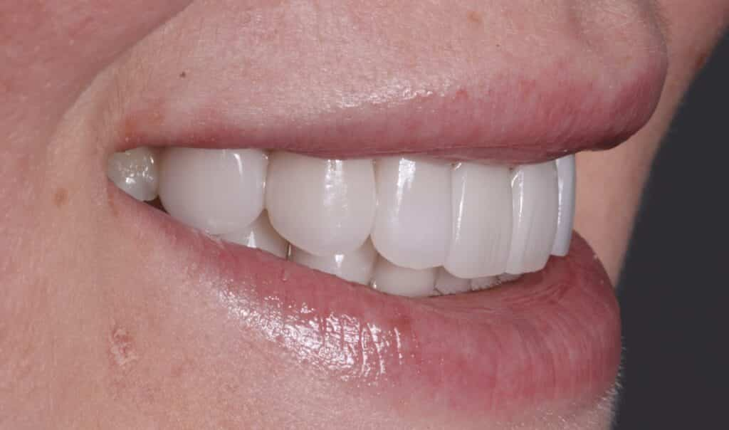 Lady smiling after instant orthodontics from Dr. Goodman